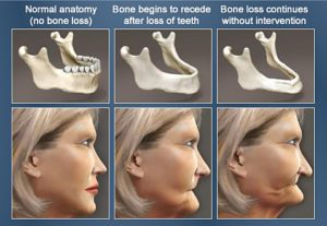 dental implants bone volume after tooth loss