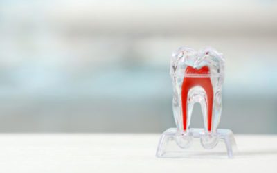 Fact or Fiction? Root Canals in Houston