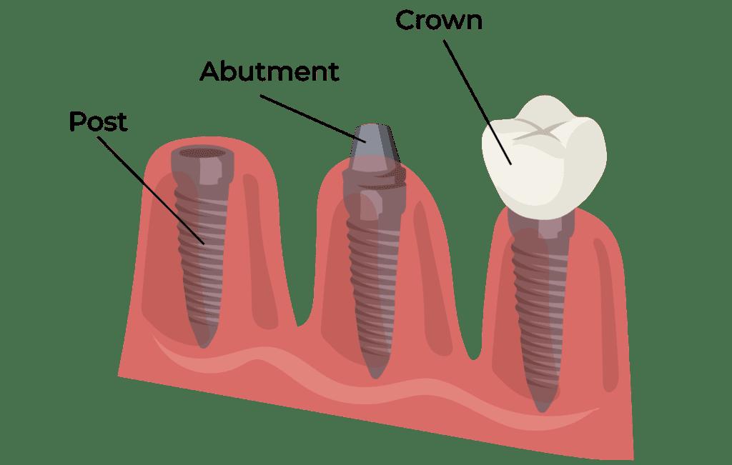 Dental Implants in Houston