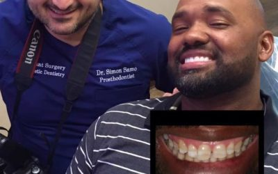 An Extreme Smile Makeover For The New Year   Houston, TX