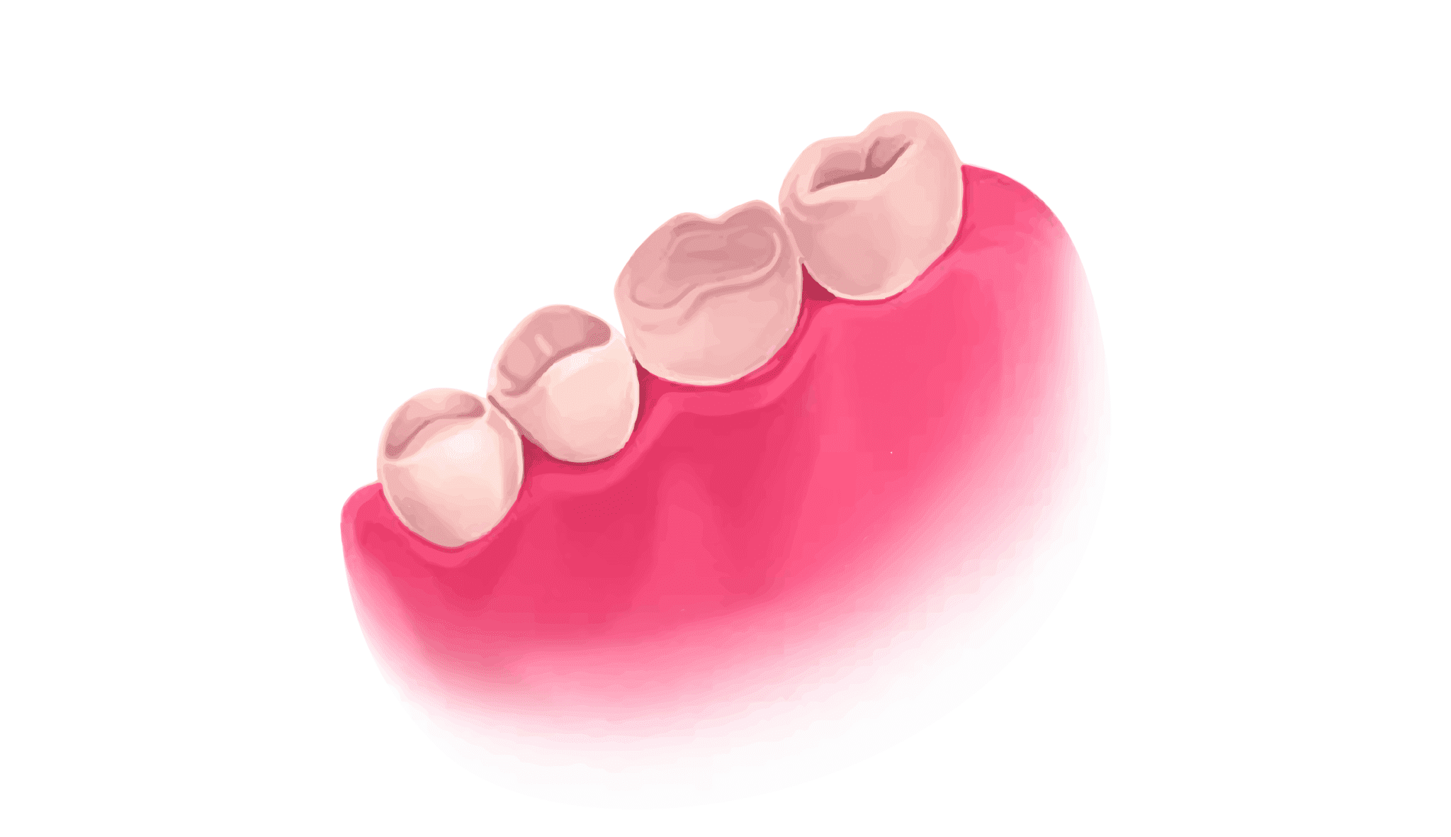 Tooth colored fillings in Houston