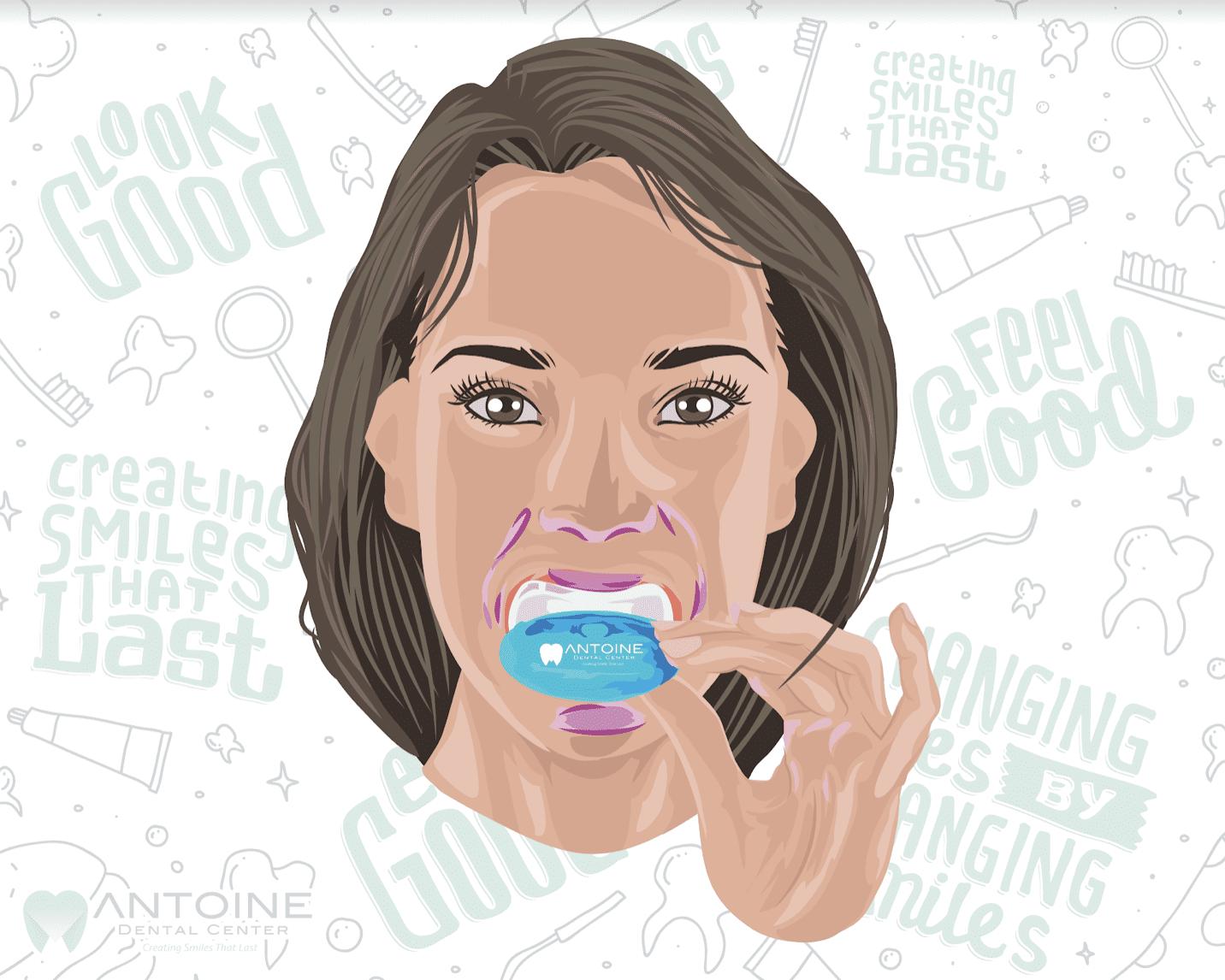 Teeth whitening in Houston