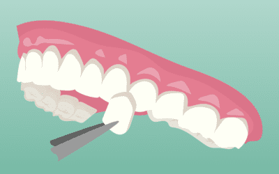 Affordable Cosmetic Dentistry in Houston, TX