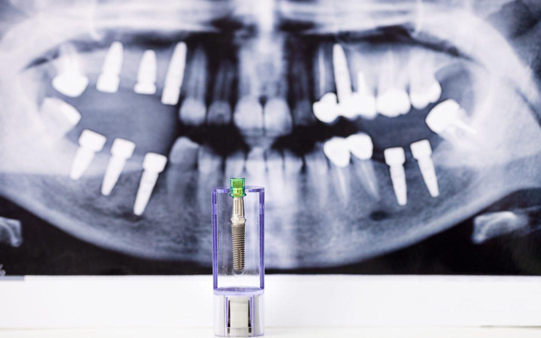 Missing Teeth? Get Dental Implants!