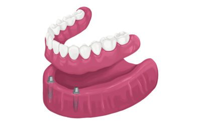 Finding The Perfect Dentures in All of Houston, TX